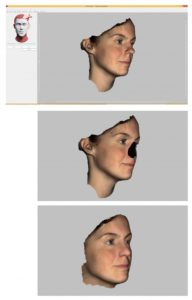 Een neus naar keus dankzij 3D-technologie