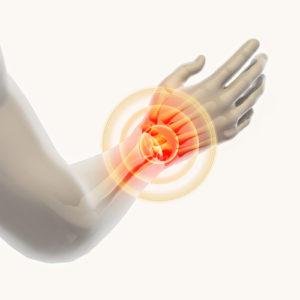 SEH heeft onvoldoende kennis over hand- en polsletsels