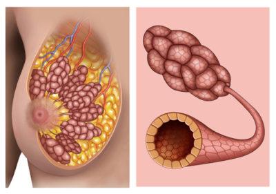 Borsttumor vanuit de melkklier vergt specifieker behandelprotocol