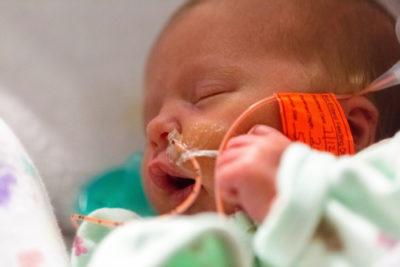 'Zestig procent baby's op intensive care heeft later aandachts- en geheugenproblemen'